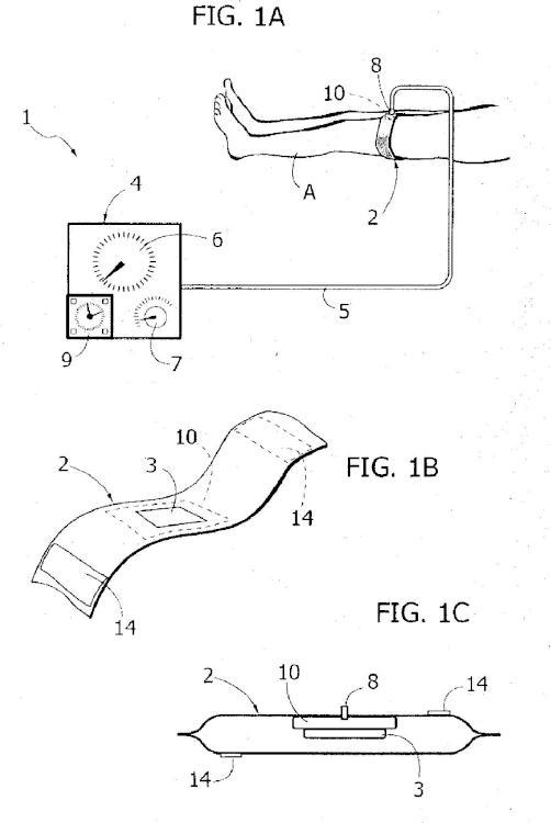 Dispositivo para el tratamiento neumático de una extremidad inferior con problemas de arteriopatía periférica.