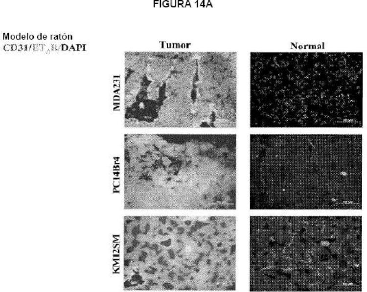 Tratamiento de metástasis cerebrales con inhibidores de los receptores de endotelina en combinación con un agente quimioterapéutico citotóxico.