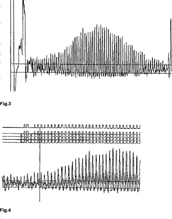 Dispositivo y procedimiento para la medición de la presión sanguínea.