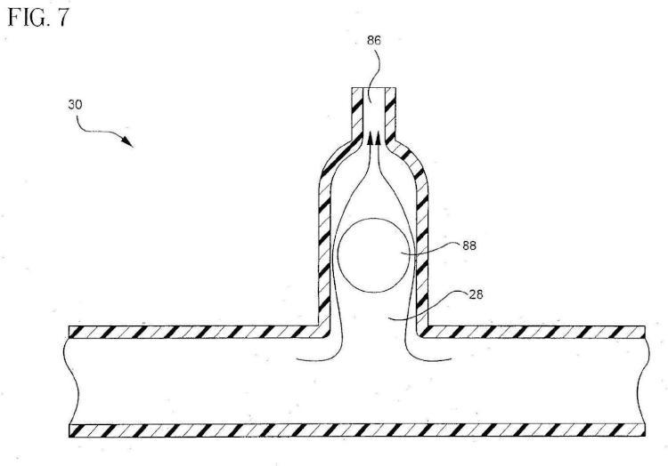 Ilustración 4 de la Galería de ilustraciones de Descarga en línea de sistema extravascular