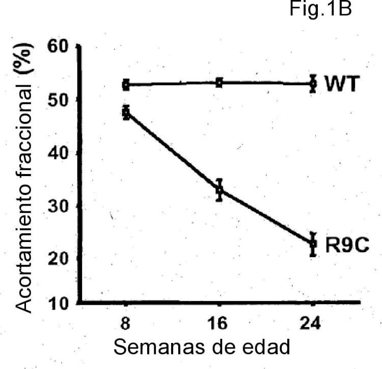 Uso de IGFBP-7 en la evaluación de la insuficiencia cardíaca.