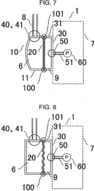 Ilustración 4 de la Galería de ilustraciones de Sensor de presión para circuito de circulación extracorporal
