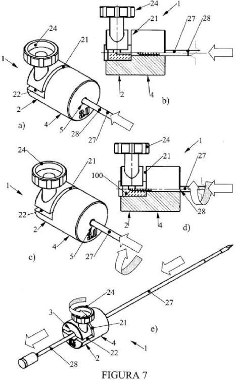 Dispositivo para la fijación del injerto en mosaicoplastia de tracción.