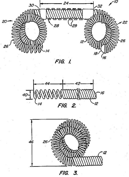 Dispositivos contraconceptivos transcervicales de oclusión de las trompas de Falopio.
