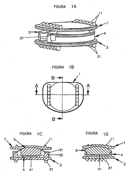 Prótesis de disco intervertebral.