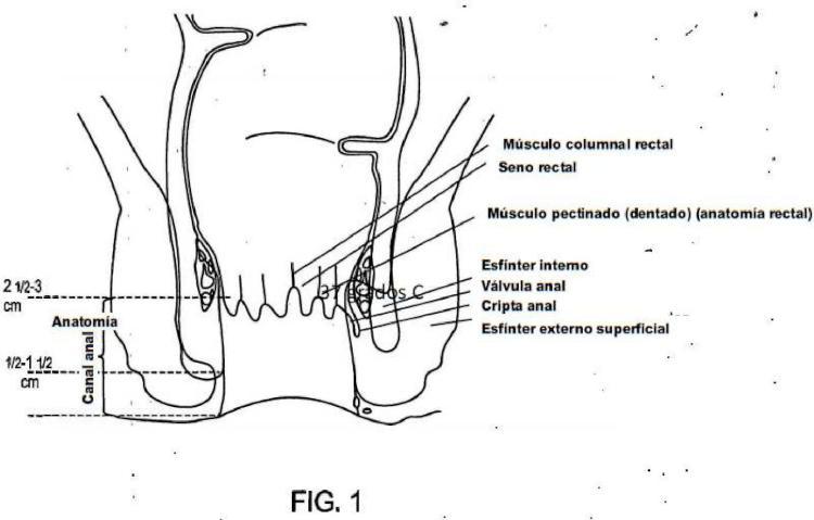 Dispositivo para incontinencia fecal. : Patentados.com