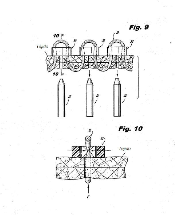 Ilustración 4 de la Galería de ilustraciones de Conjunto de sutura y retenedor