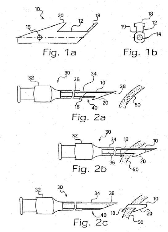 Implante para regular un flujo.