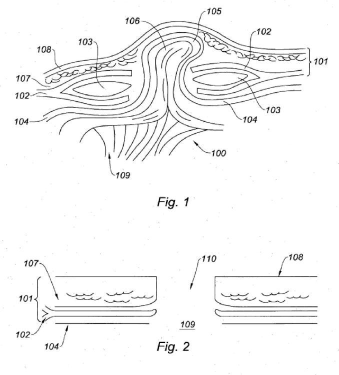 Prótesis para hernia umbilical.