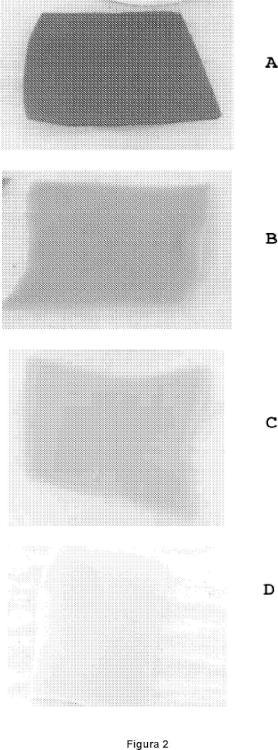 Procedimiento de desintoxicación de un tejido biológico.
