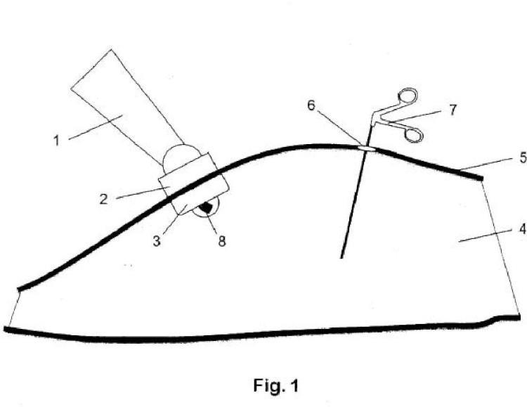 Sistema robótico de asistencia a la cirugía mínimamente invasiva de puerto único capaz de acomodar su movimiento a la anatomía de la pared abdominal.