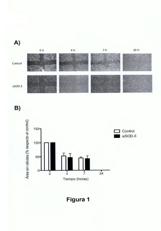 Uso de anticuerpos frente a la enzima SOD-3 para la inhibición del proceso de la angiogénesis y aplicaciones de dichos anticuerpos y de dicha enzima SOD-3.