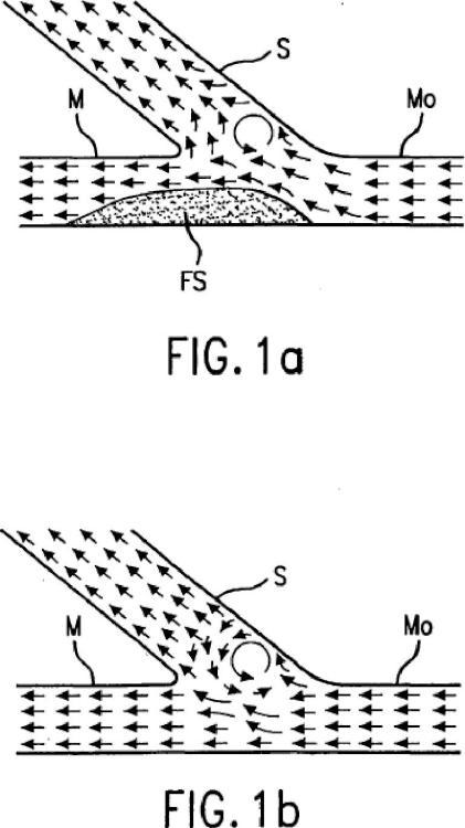 Endoprótesis para flujo de sangre mejorado.