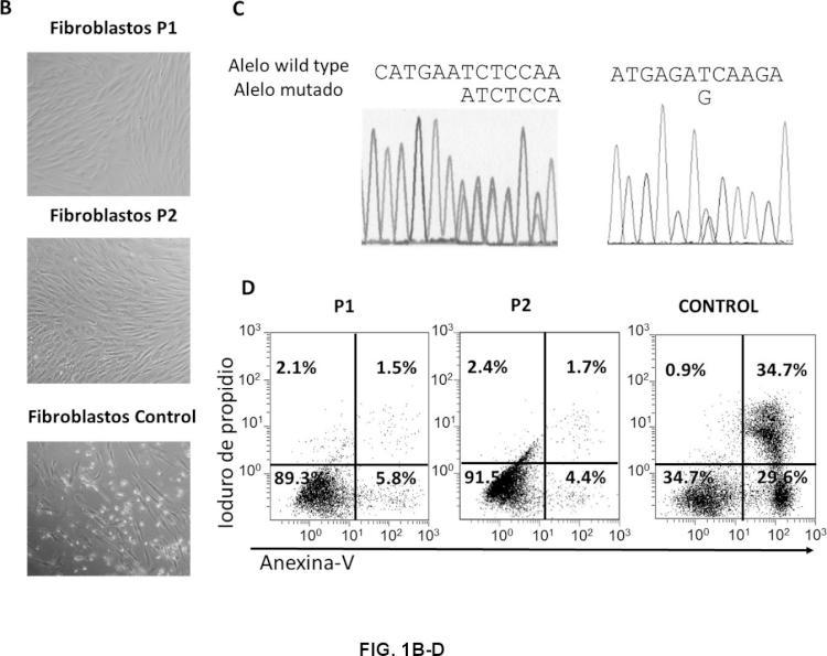 ARN de interferencia para el tratamiento del Síndrome Linfoproliferativo Autoinmune de tipo la.
