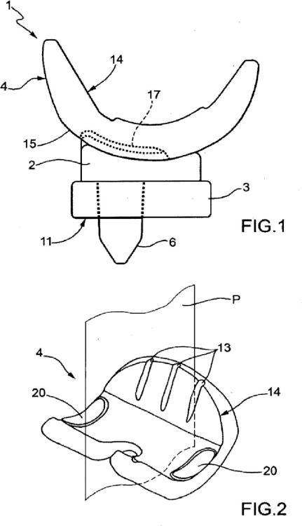 Dispositivo espaciador modular temporal para articulaciones del cuerpo humano.