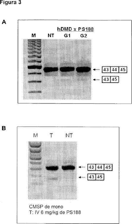 Procedimiento para la eficiente omisión del exón (44) en distrofia muscular de Duchenne y medios asociados.