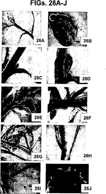 Vectores de expresión virales de plantas y uso de los mismos para generar variaciones genotípicas en genomas de plantas.