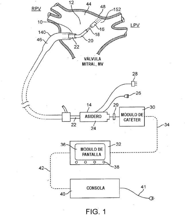 Sistemas ultrasónicos para ablación de tejido.