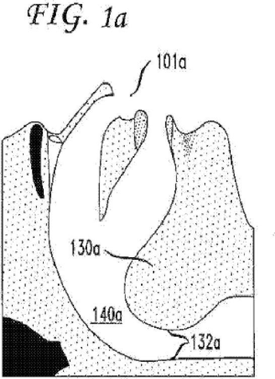 Dispositivos para el tratamiento de la apnea del sueño obstructiva.