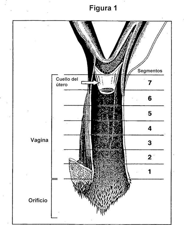 Precursor de esteroides sexuales en combinación con un modulador selectivo del receptor de estrógenos para la prevención y tratamiento de atrofia vaginal en mujeres postmenopáusicas.