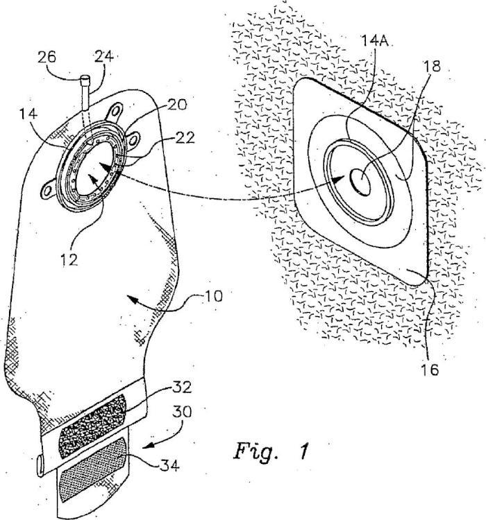 Sistema de limpieza de bolsa de colostomía.