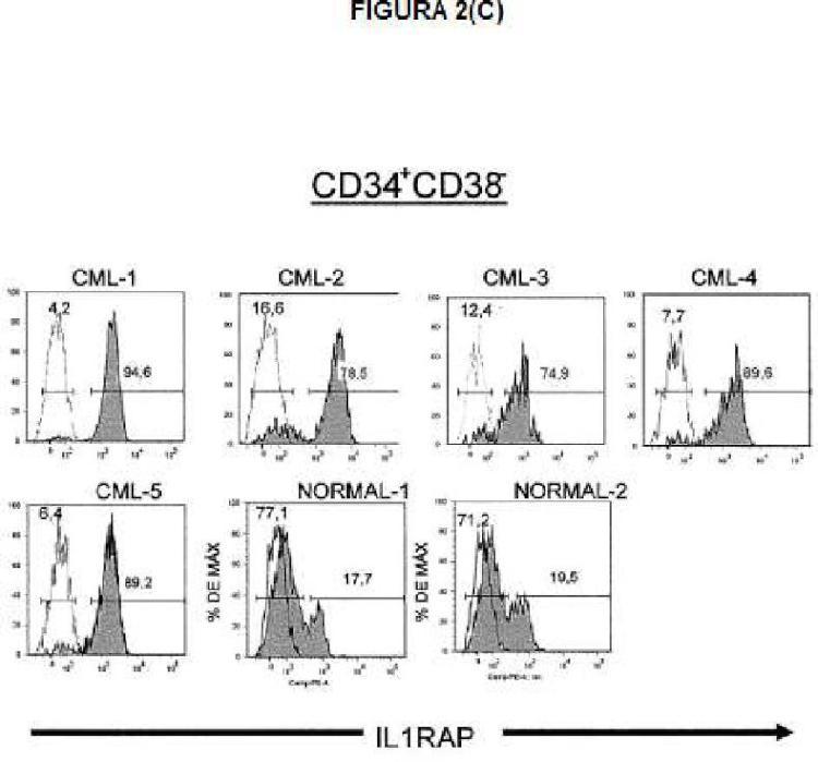 Ilustración 4 de la Galería de ilustraciones de Expresión de IL1RAP en células de leucemia mieloide aguda y crónica