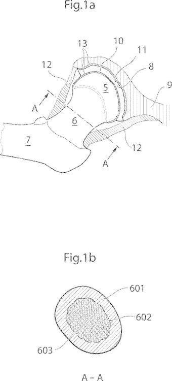 Dispositivo de articulación de cadera.