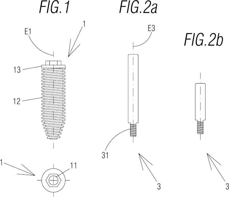Sistema y procedimiento de implantoplastia guiada.
