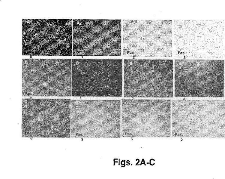 Ilustración 2 de la Galería de ilustraciones de Células adherentes de la placenta y uso de las mismas en el tratamiento de enfermedad