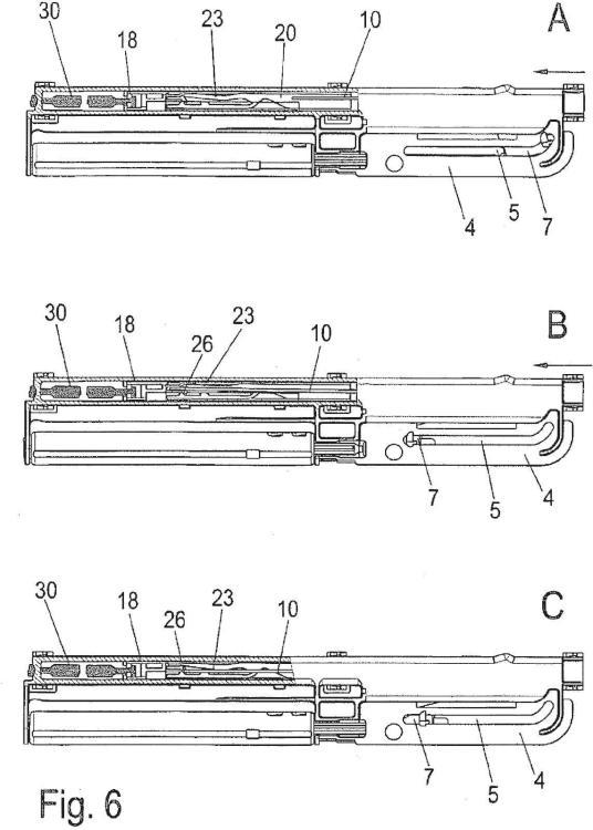 Ilustración 5 de la Galería de ilustraciones de Sistema de retención