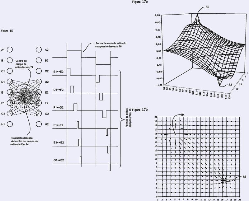 Estimulador de matrices.