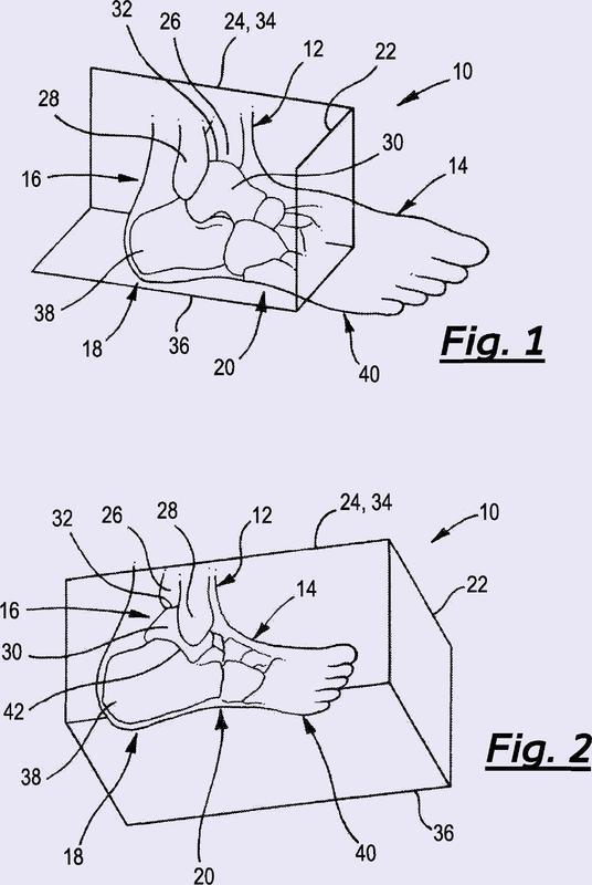 Dispositivos ortopédicos de tobillo-pie.