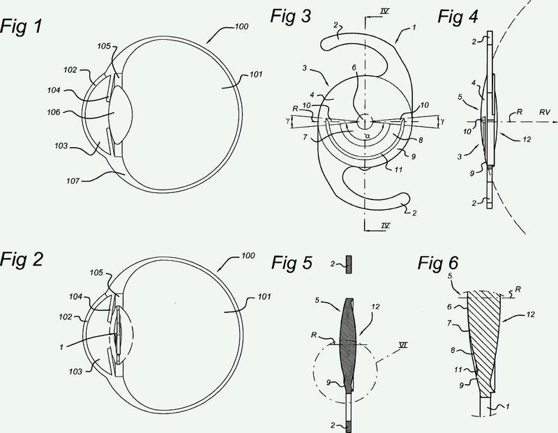 Lente oftálmica con sectores ópticos.