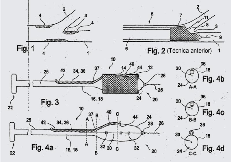 Dispositivos de tratamiento de vasos.