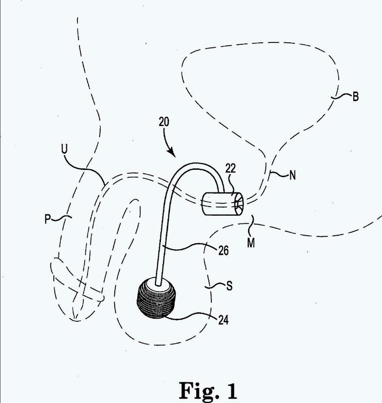 Sistema de esfínter urinario artificial.