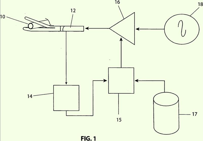 Control mediado por impedancia de suministro de potencia para electrocirugía.