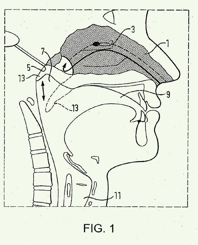 Dispositivos de administración de fármaco nasal.