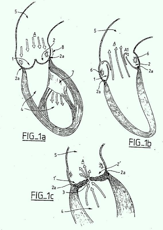 Método de fabricación de un conjunto de válvula protésica.