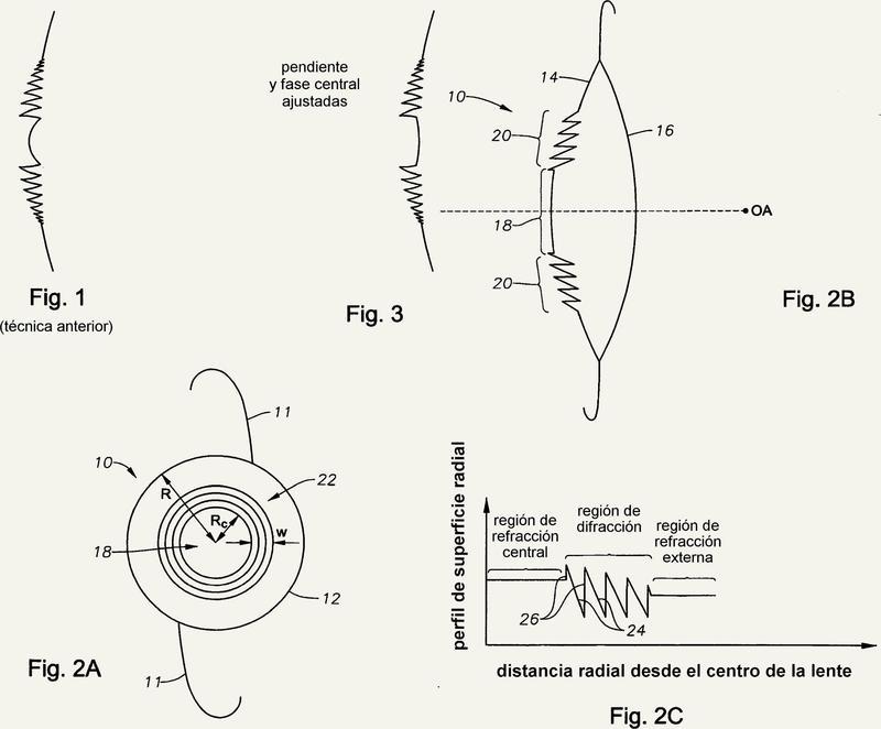 4a8a4c0a73 Solicitante/s: NOVARTIS AG. Clasificación: A61F2/16. Lente intraocular ...