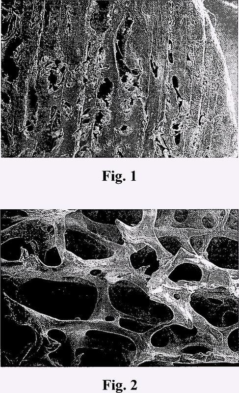 Matriz de implante óseo y método para prepararla.