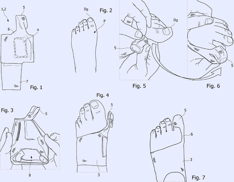 Dispositivo ortopédico para el tratamiento del Hallux Valgus por efecto mecánico.