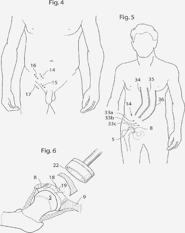 Copas acetabulares : Patentados.com