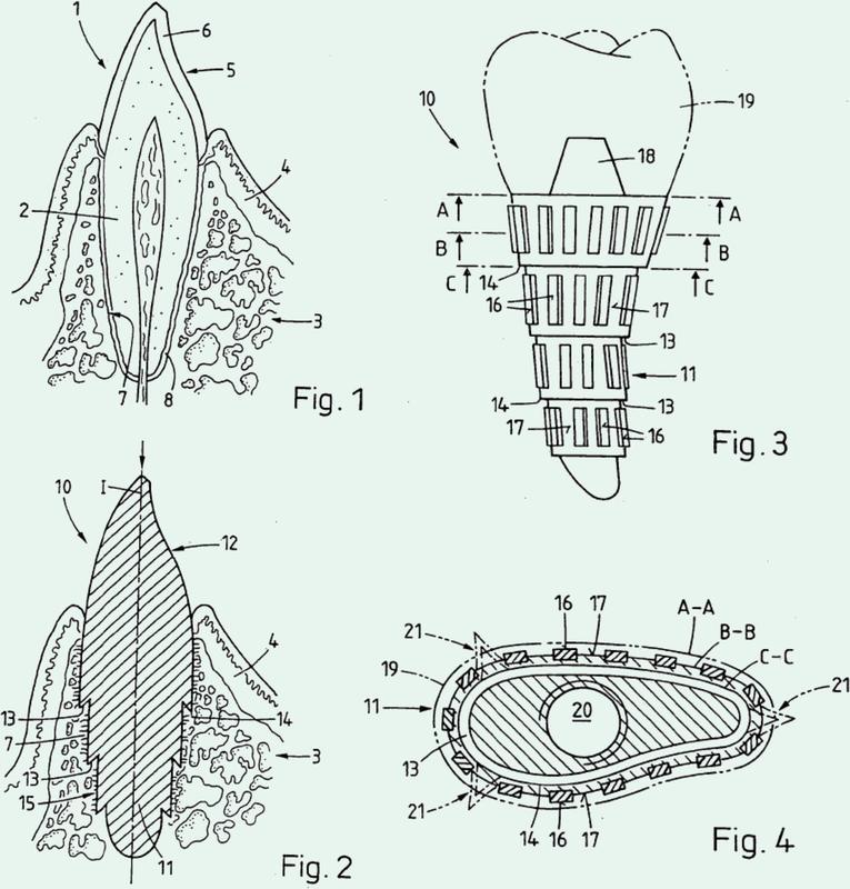 Implante a implantar en tejido óseo y procedimiento para su fabricación.