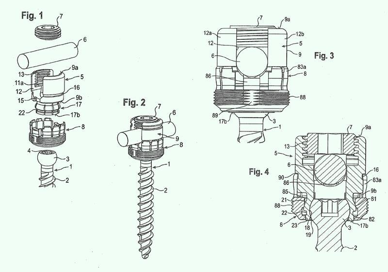 Dispositivo de anclaje de hueso y herramienta que coopera con dicho dispositivo de anclaje de hueso.