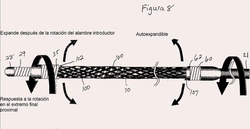 Sistema y método para introducir y desplegar un dispositivo de oclusión dentro de un vaso.