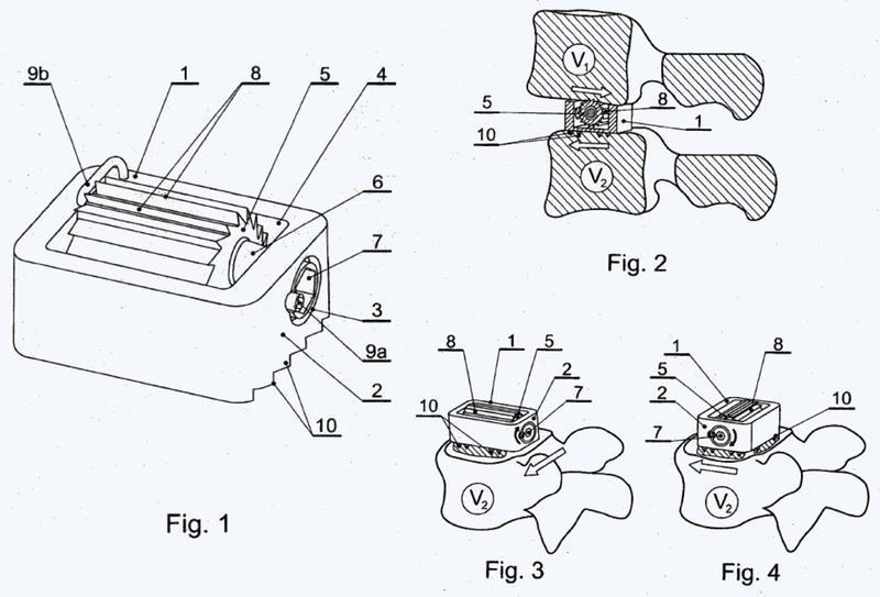Implante intervertebral para el posicionamiento mutuo de vértebras adyacentes.