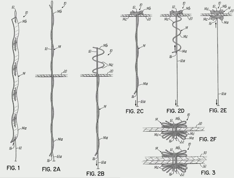 Anclaje de tejido, sistema de anclaje y procedimientos de uso del mismo.