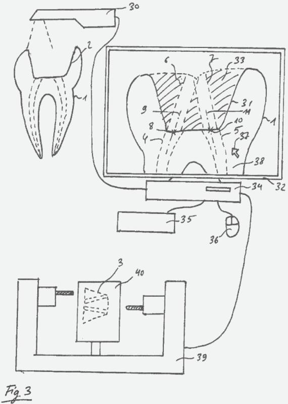 Procedimiento para planificar una endodoncia de un paciente.