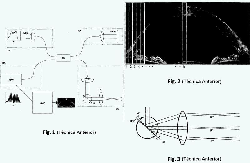 Método y sistema de tomografía por coherencia óptica.