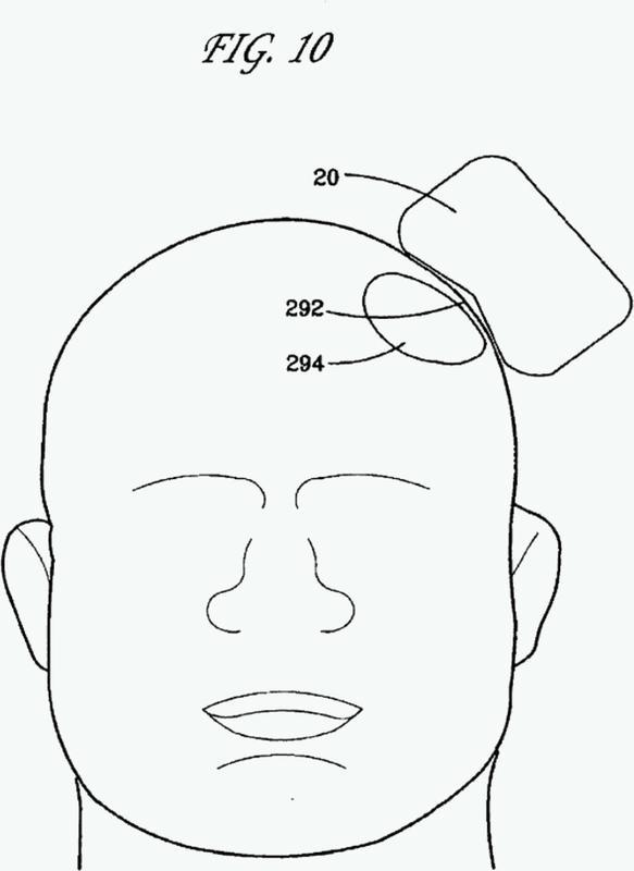 Método y aparato para determinar la proximidad de una bobina de EMT a la cabeza de un sujeto.